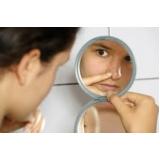 tratamento para cicatriz de acne no rosto Itaim Paulista