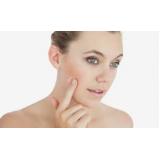 tratamento para cicatriz de acne Jardim dos Jacarandás