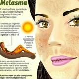 tratamento para manchas de melasma Vila Pompéia