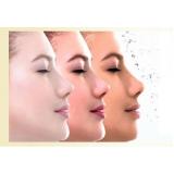 tratamento para manchas escuras no rosto Sítio Boa Vista