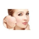 tratamento para marcas de acne no rosto Jabaquara