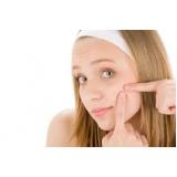 tratamento a laser para marcas de acne