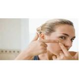 tratamento de cicatrizes de acne