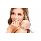 tratamento de marcas de acne