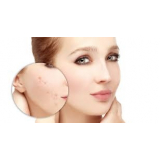 tratamento para marcas de acne no rosto