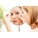 tratamento para marcas de acne Vila Mariana