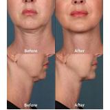 tratamento para papada do pescoço preço M'Boi Mirim