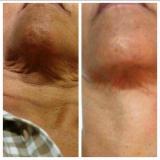 tratamento para papada flacidez Ipiranga