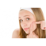 tratamento para pele com acne Vila Parque São Jorge