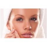 tratamento para pele com cicatriz de acne Penha