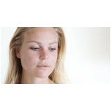 tratamento para pele do rosto com manchas preço Cidade Ademar