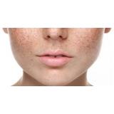 tratamento para pele seca Vila Nogueira