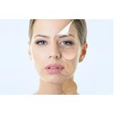 tratamento para rejuvenescimento facial preço Jardim das Rosas