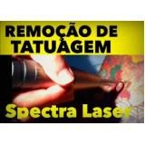 tratamento para remoção de tatuagens Vila Anglo Brasileira