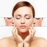 tratamento para rosto com manchas preço Vila Azevedo
