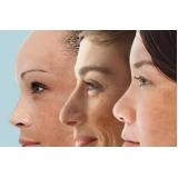 tratamento para tirar manchas da pele preço Vila Ida