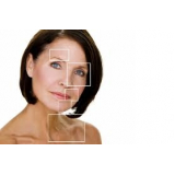 tratamentos a laser para manchas no rosto Perdizes