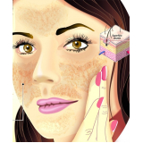 tratamento para manchas escuras no rosto