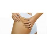 radiofrequência para gordura localizada