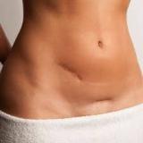 Tratamento para Cicatrizes Cirúrgicas
