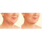 tratamento para papada no pescoço