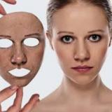 tratamentos para cicatriz de acne preço Itaim Bibi