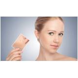 tratamentos para cicatriz de acne Cidade Dutra