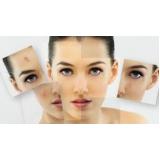 tratamentos para cicatrizes de acne Jardim Alice