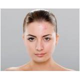 tratamentos para manchas de acne Chácara Itaim