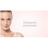 tratamentos para marcas de acne Vila Madalena