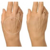 tratamentos para pele Ibirapuera
