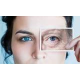 tratamentos para rejuvenescer o rosto Parelheiros