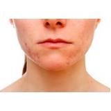 tratamento para manchas de sol no rosto
