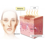 tratamentos para tirar manchas do rosto Bixiga