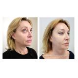 ultrassom microfocado flacidez facial preço Vila Santa Mooca