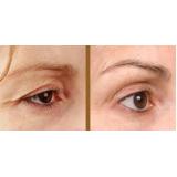 ultrassom microfocado olhos preço Moema