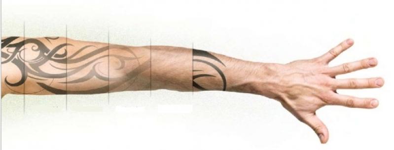 Tirar Tatuagem a Laser Sumarezinho - Remoção de Tatuagem em Pinheiros