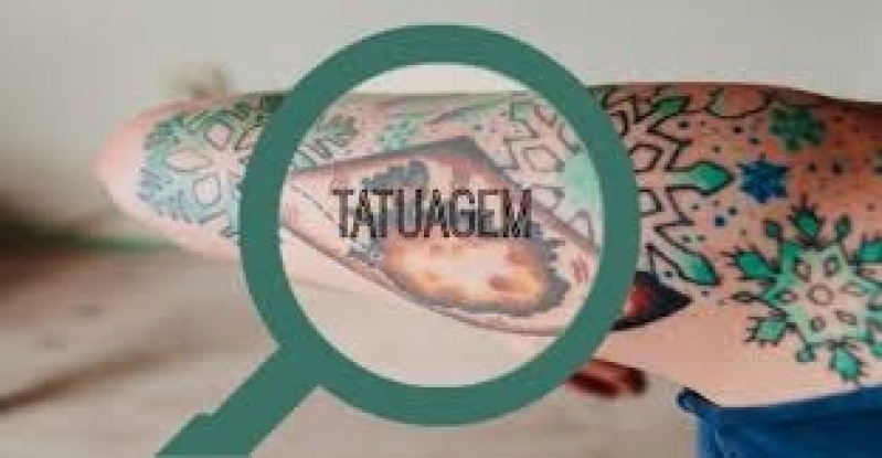 Tratamento a Laser para Remoção de Tatuagem Preço Jardim São Luiz - Remoção de Tatuagem em Pinheiros