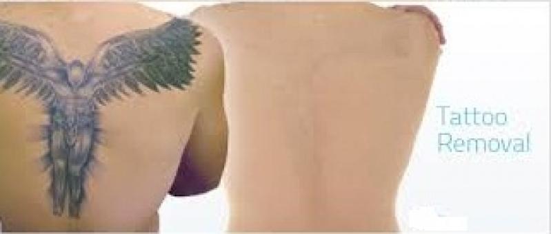 Tratamento a Laser para Tirar Tatuagens Ibirapuera - Remoção de Tatuagem em Pinheiros