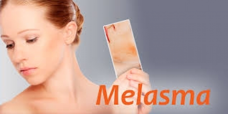 Tratamento para Melasma em Sp
