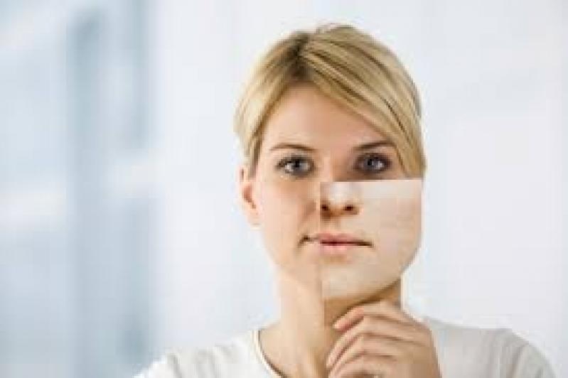 Tratamento para Pele do Rosto Penha - Tratamentos para Manchas na Pele