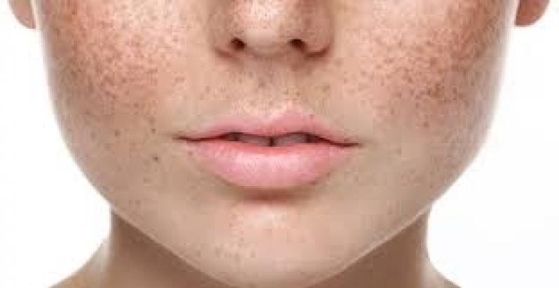 Tratamento para Pele Seca Interlagos - Clareamento de Manchas no Rosto