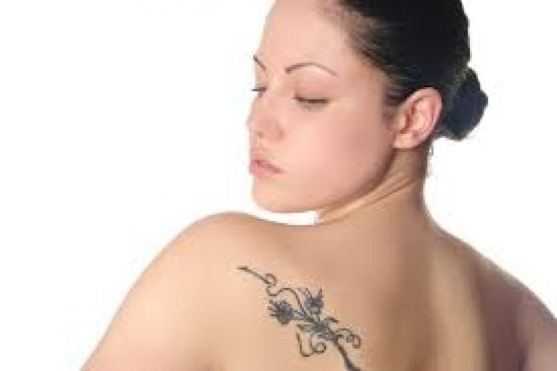 Tratamento para Remoção de Tatuagens Preço Itaquera - Remoção de Tatuagem em Pinheiros