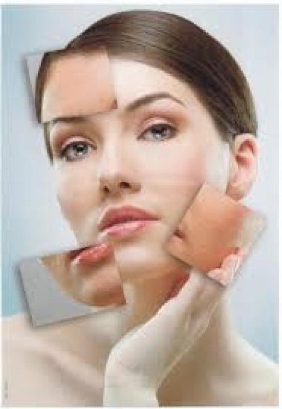 Tratamento para Tirar Cicatrizes de Acne Socorro - Tirando Manchas do Rosto
