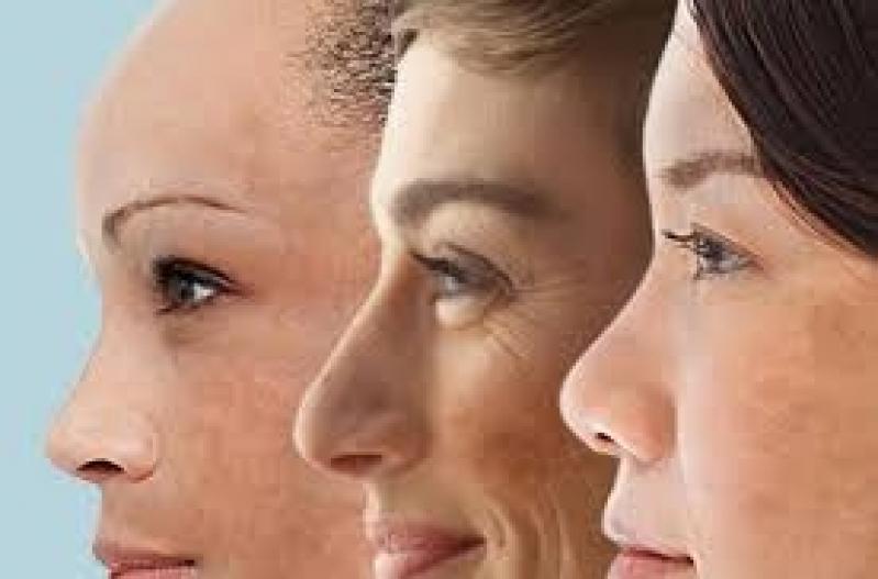 Tratamento para Tirar Manchas da Pele Preço Vila Ida - Tratamento para Tirar Manchas do Rosto