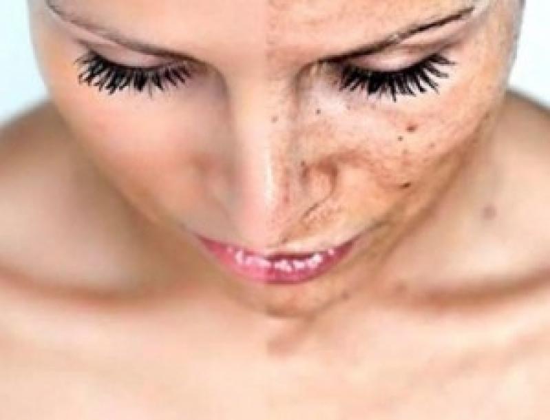 Tratamento para Tirar Manchas da Pele Tatuapé - Eliminar Manchas no Rosto