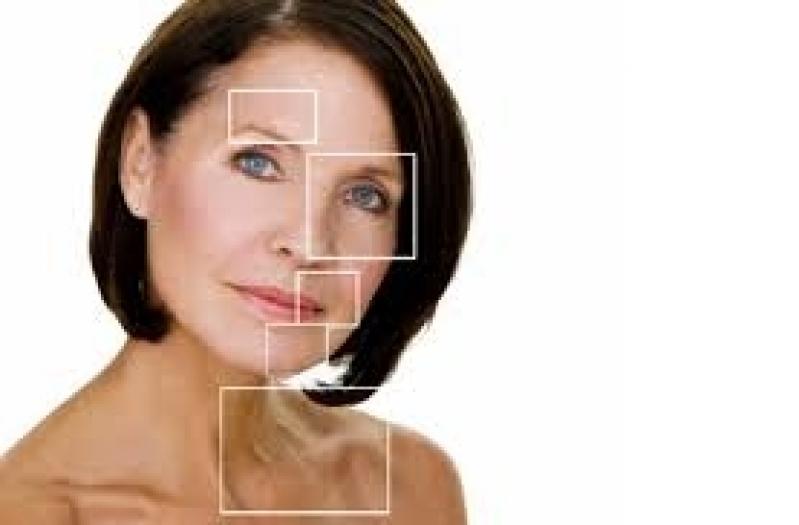 Laser para Melasma