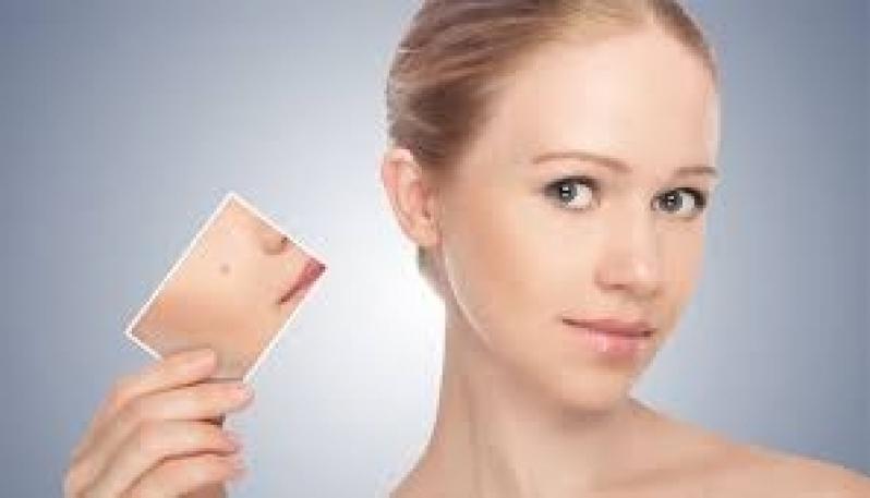 Tratamento para Cicatriz de Acne no Rosto