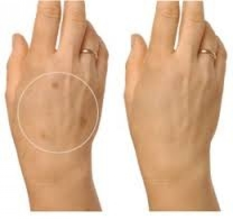 Tratamentos para Pele Bixiga - Clareamento de Manchas no Rosto