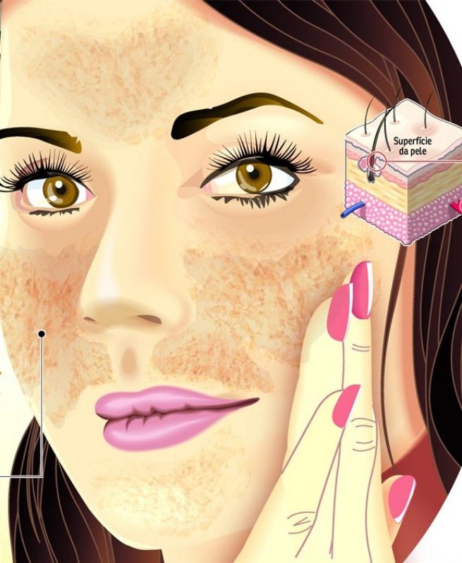 Tratamentos para Tirar Manchas da Pele em Parelheiros - Tratamento de Pele para Tirar Manchas